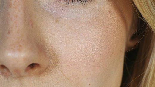 Wypełnianie ust kwasem hialuronowym - pielęgnacja po zabiegu